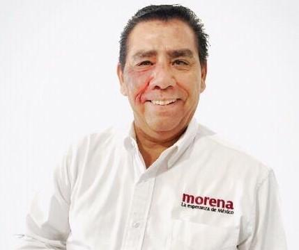 """""""Ya no es tiempo de intocables del poder""""; Chaparro ante detención de Cienfuegos"""